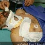 مجروح شدن محیط بان خوزستانی