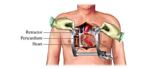 جراحی باز قلب