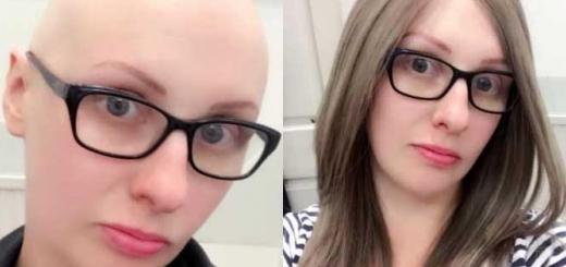 ریزش مو در شیمی درمانی