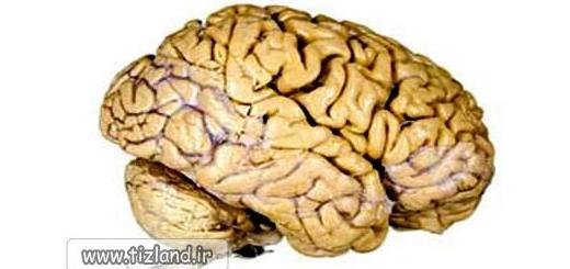 مواظب نیمکره های مغزتان باشید