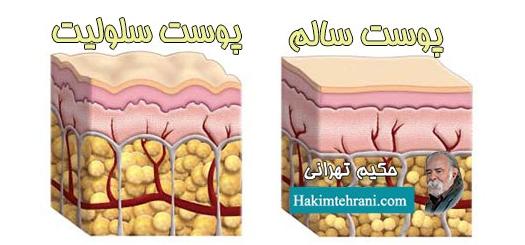 لاغر کننده ها ( پوست سالم - پوست سلولیت ) حکیم تهرانی