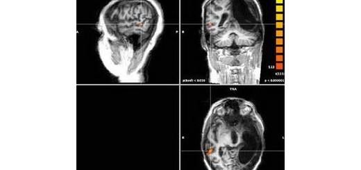 مغز در صورت آسیب، اطلاعات را به نیم کره دیگر منتقل می کند