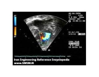 دانلود تحقیق ماوراء صوت (Ultrasound)