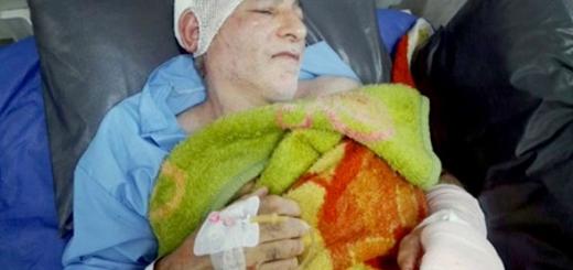 مجروح شدن دو جنگلبان بابل توسط قاچاقچیان چوب