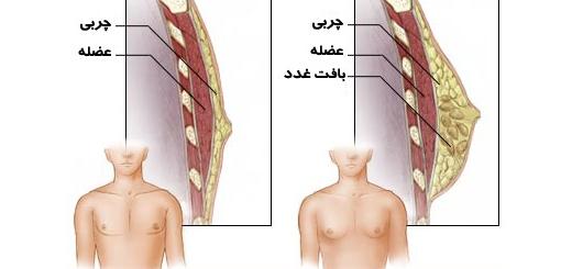 ژنیکوماستی - بزرگ شدن خوش خیم سینه در مردان - Gynecomastia